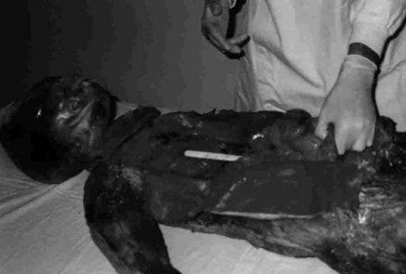 autopsija-vanzemaljac-u-vojnoj-bolnici-jna-1376327953-351697
