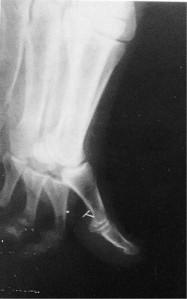 Radio de l'implant en T Source photo: Dr Leir